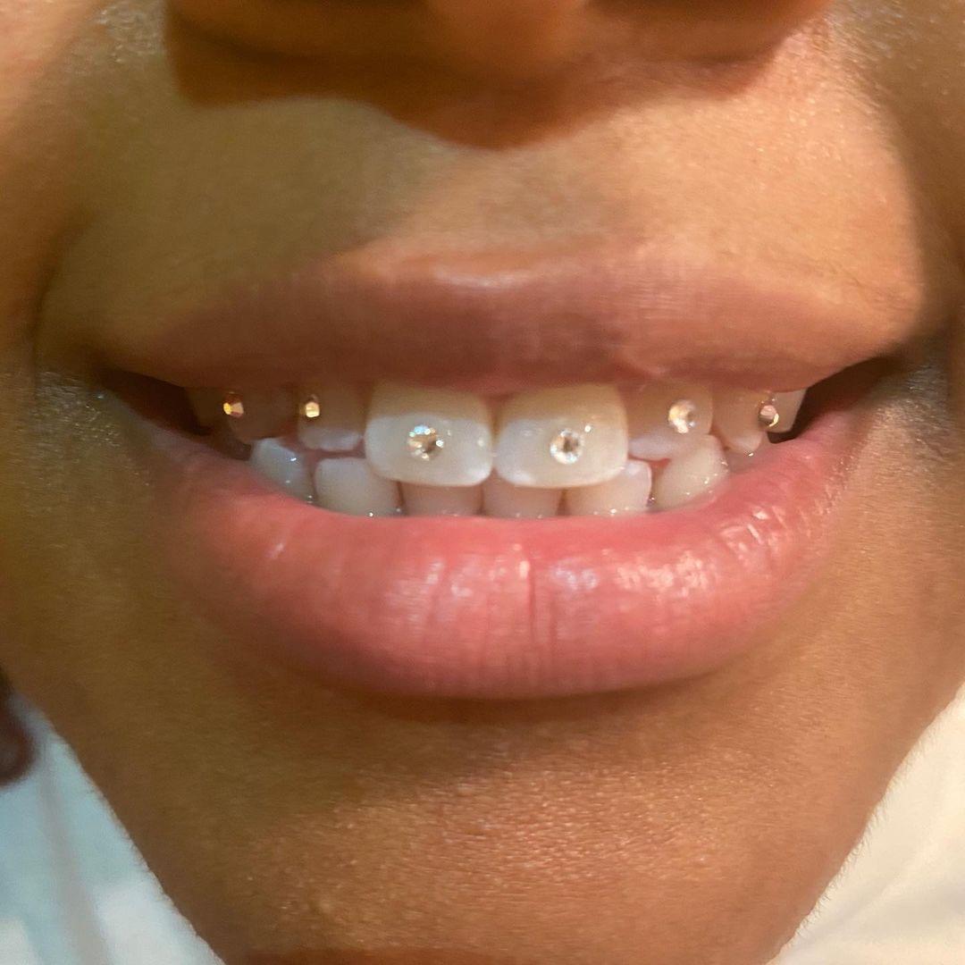 Tooth Gems/Training